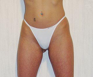 Back bikini bikini in jassi rear string string woman
