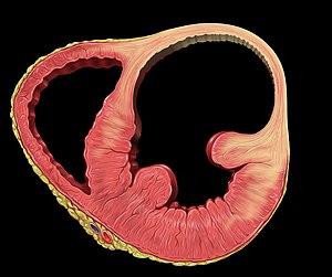 ventricular aneurysm - wikipedia, Human Body