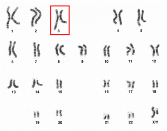 Chromosome 3 (human) - Chromosome 3 pair  in human male karyogram.