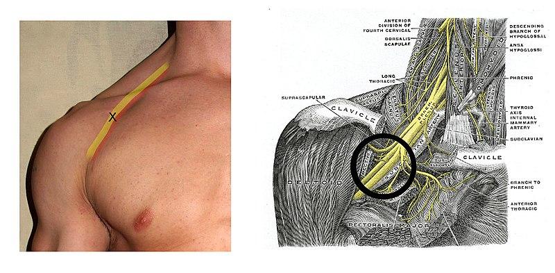 brachial plexus pdf