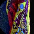 LSV MRI spondylolisthesis T1W T2W STIR 16.jpg
