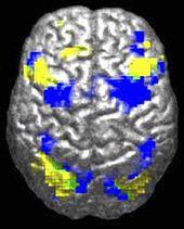 Een menselijk brein gezien van boven.  Ongeveer 10% is gemarkeerd in het geel en 10% in het blauw.  Er is slechts een klein (misschien 0,5%) groene regio waar ze elkaar overlappen.