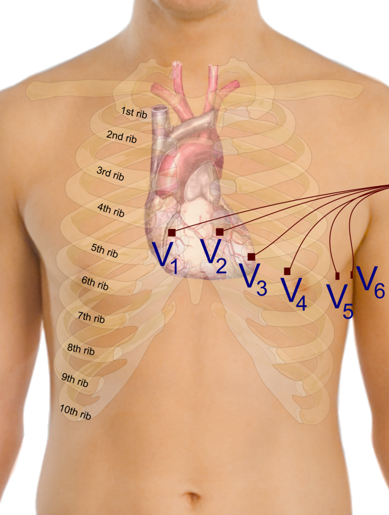 ecg hook up Insidesurgery medical information blog in right sided ecg leads v3-v6 are placed along the right anterior chest wall in a mirror position as the v3-v6 leads in.
