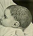 Recherche et diagnostic de l'hérédo-syphilis tardive (1907) (14781444544).jpg