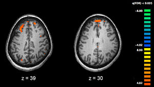 Reconstructive memory - FMRI showing the active areas of a schizophrenic participant's brain while performing working memory tasks