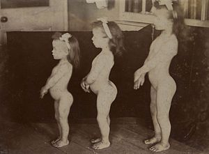 Three sisters with achondroplasia Wellcome L0061377.jpg