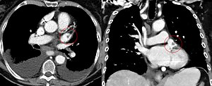 Atrium (heart) - CT scan of the chest showing a thrombus in the left atrial appendage (left: axial plane, right: coronal plane)