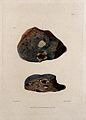 Two sections of diseased lung. Coloured mezzotint by W. Say Wellcome V0009753ER.jpg
