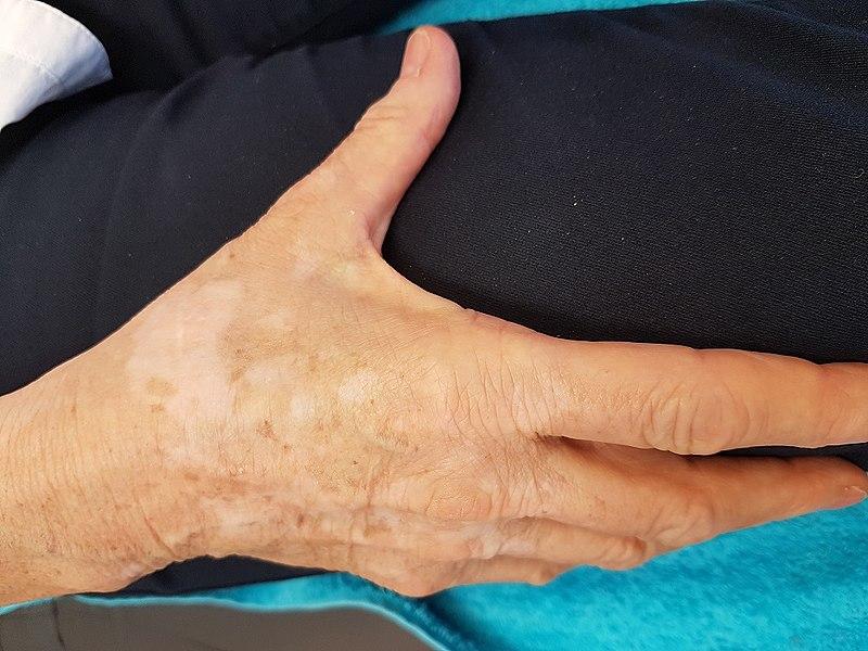 File:Vitiligo voor dermatografie behandeling.jpg