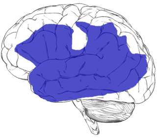 Aphasia Inability to use spoken language