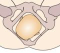 Cephalic presentation - left occipito-anterior.png
