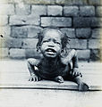 Child just arrived at Bompono orphanage, Congo, ca. 1900-1915 (IMP-CSCNWW33-OS10-17).jpg