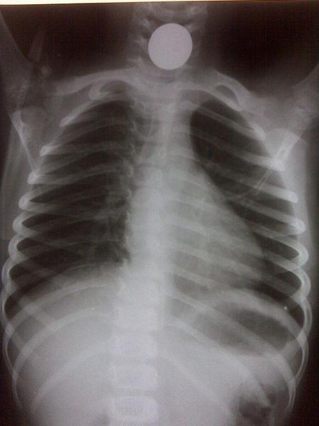 File:Coin esophagus.jpg