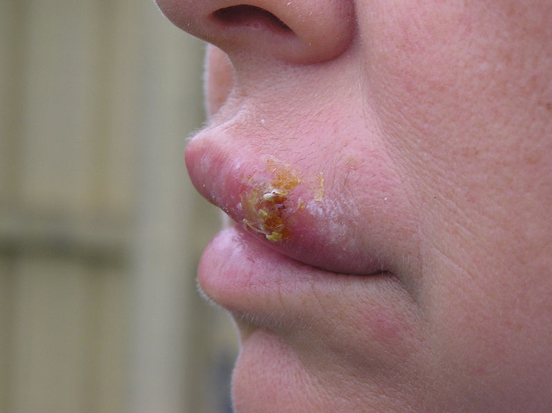 File:Cold sore.jpg
