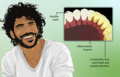 Depiction of a man with Dental Plaque.png