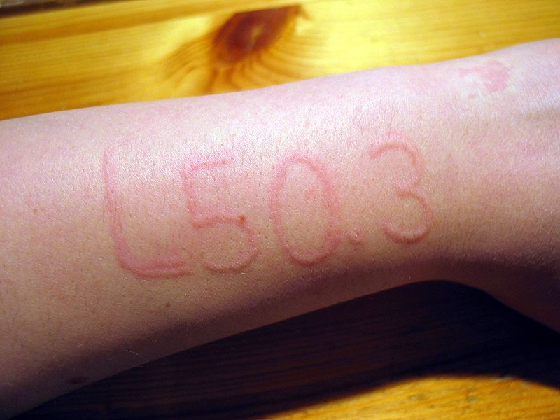 Dermatographic urticaria (also known as dermographism, dermatographism or skin writing) is a skin disorder seen in 4–5% of the population and is one of the most common types of urticaria,[1] in which the skin becomes raised and inflamed when stroked or rubbed with a dull object