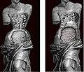Efectes del corsé en el cos femení (26790003605).jpg