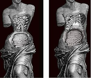 Tightlacing - Effect of Corset in human body. Image by Valencian Museum of Ethnology.
