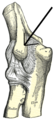 Epicondyluslateralishumeri.png