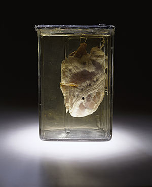 Forensic pathology - The heart of a murder victim