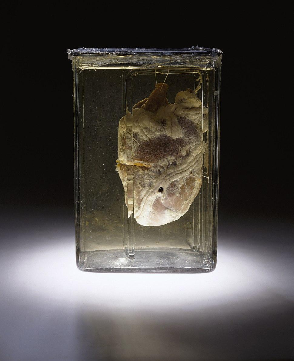 Forensic medicine heart