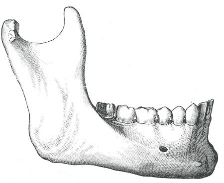 Gray184