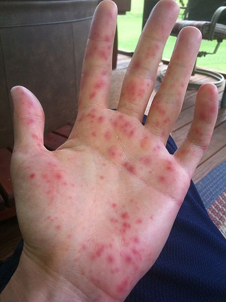Hand Foot And Mouth Disease Pictures, Images & Photos ...
