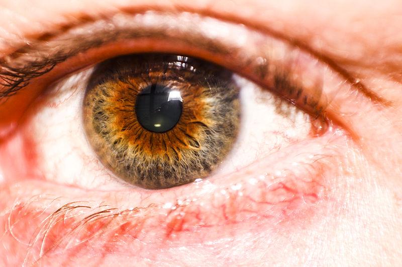 Natural Amber Colored Eyes