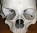 Jan25-skull.jpg