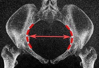 Pelvic inlet - Image: Low dose CT of transverse diameter of pelvic inlet