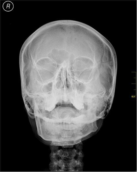 File:Medical X-Ray imaging ANX02 nevit.jpg
