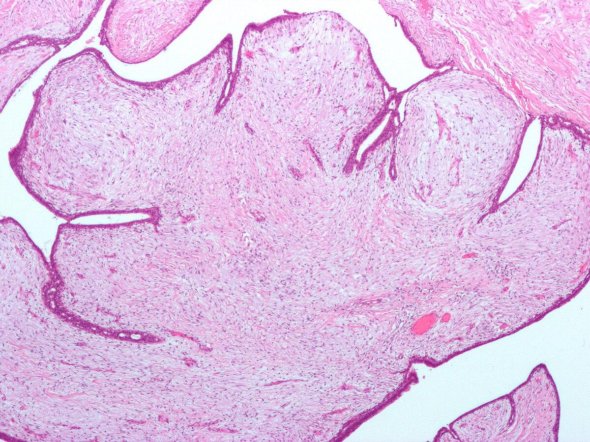 Húgyhólyag-papillomák: tünetek és kezelés, Pikkelyes fibroepithelialis papilloma
