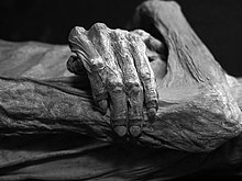 A naturally mummified body (from Guanajuato)