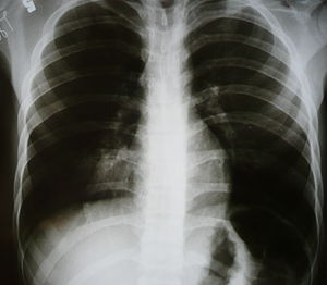 Medical X-rays Round pneumonia in a 15 year pa...