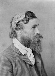 Robert McGee, scalped as a teenager by Sioux Chief Little Turtle, in 1864.