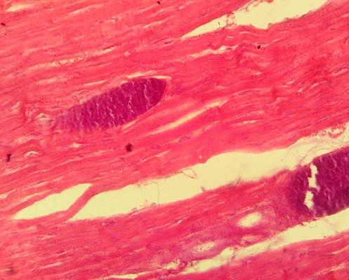 Sarcocystis.jpg