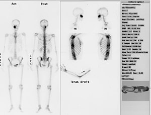 Shown above is the bone scintigraphy of a young woman.