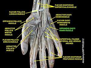 Opponens digiti minimi muscle of hand - Image: Slide 17OOOO