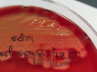 Strangles - Colonies of Streptococcus equi on a blood agar plate.
