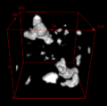Superfície para cálculo da dimensão fractal.png