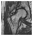 T1 MRI of partial osseous avulsion of greater trochanter.jpg
