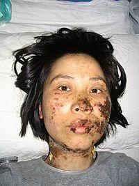 Falun Gongin harjoittaja Gao Rongrongia kidutettiin sähköpampuilla Shenyangin kaupungin pakkotyöleirillä vuonna 2004. (Amnesty International) [6]