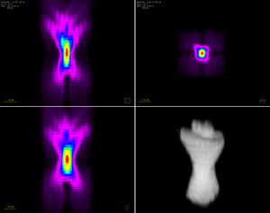 Point spread function - An example of an experimentally derived point spread function from a confocal microscope using a 63x 1.4NA oil objective. It was generated using Huygens Professional deconvolution software. Shown are views in xz, xy, yz and a 3D representation.