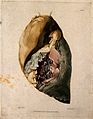 A diseased lung. Colour mezzotint by W. Say after F. R. Say Wellcome V0009751EL.jpg