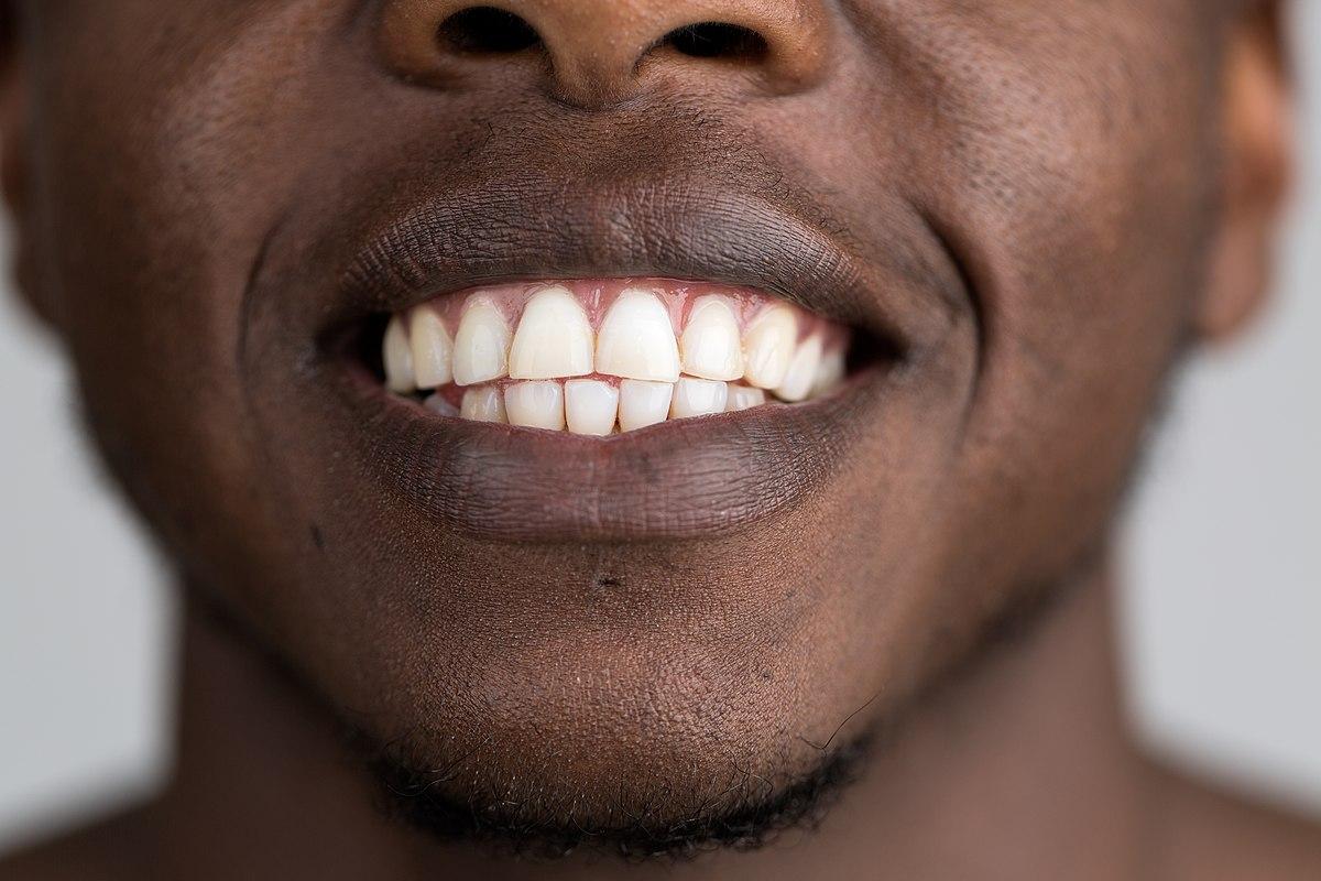 parole derivate da dente