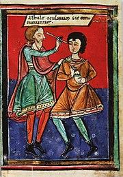 Augenoperation im Mittelalter