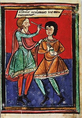 Image result for A depiction of eye surgery c. 1195