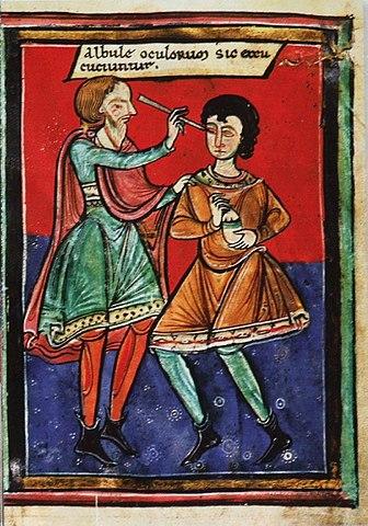 Augenoperation (Starstich) in einem mittelalterlichen Manuskript (um 1195).