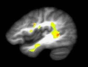 Brain of marijuana user