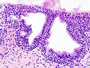 Cystitis glandularis at trigone.jpg